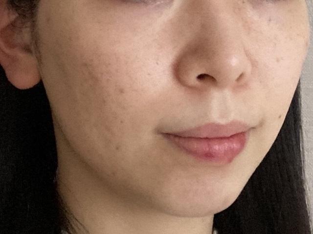 エトヴォスの化粧水と美容液を使った後