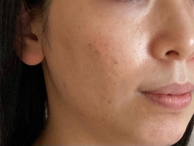 エトヴォスの化粧水と美容液を使う前