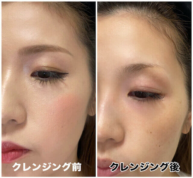 duo黒before&after